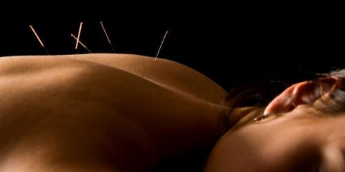 Sciatique : l'acupuncture efficace ?