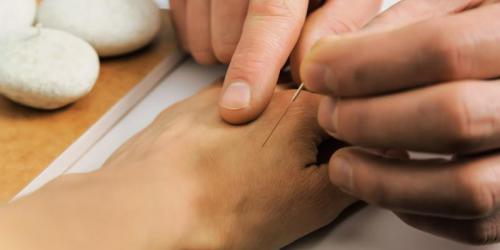 Acupuncture : un traitement du psoriasis